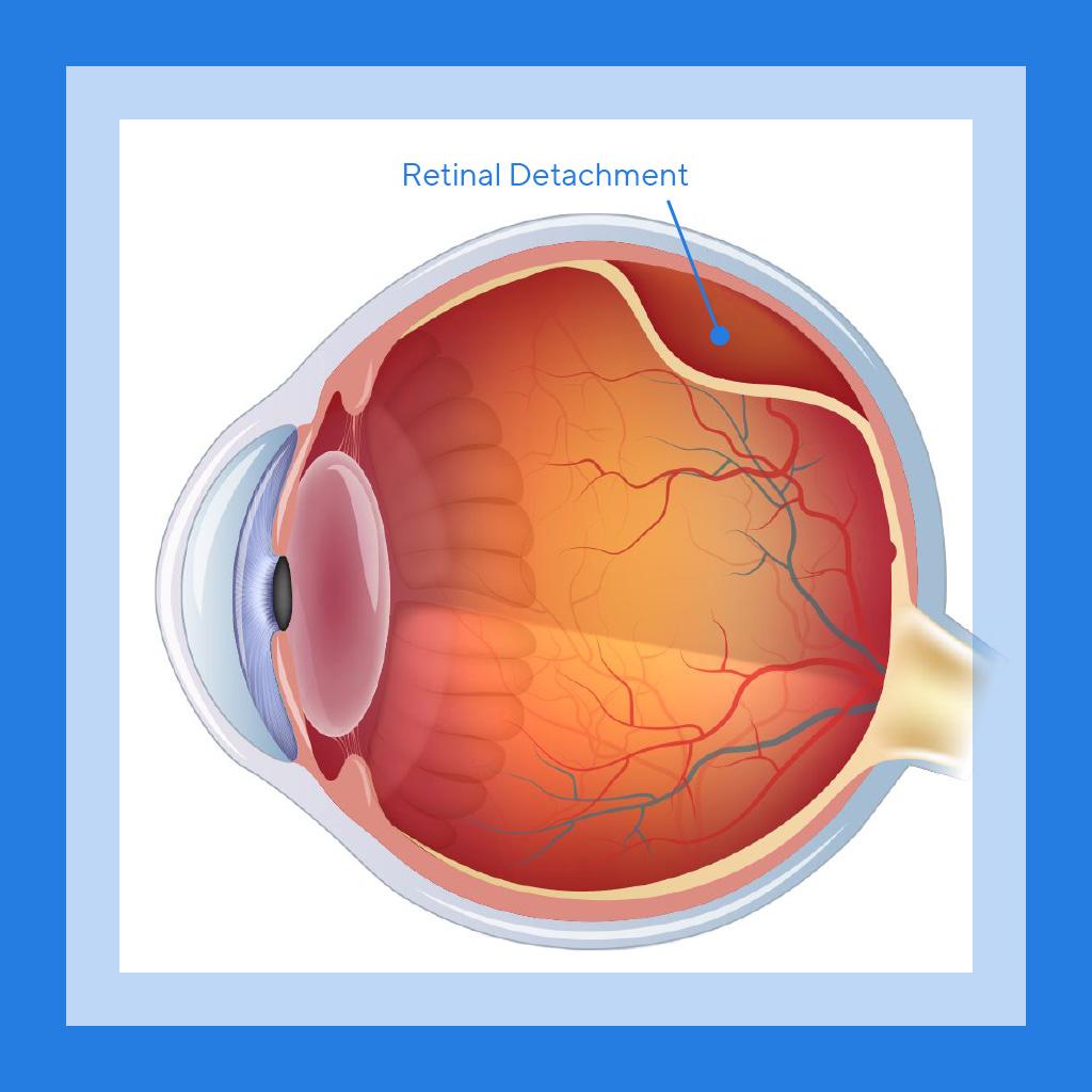 SEC_Retinal_Detachment