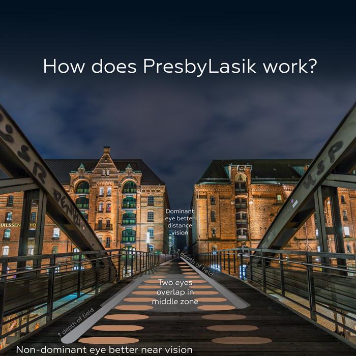 How does Presbylasik work?